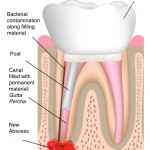 Non-Surgical Root Canal Retreatment