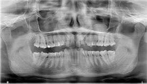 Southlake Endodontics Cone-beam Computed Tomography (CBCT)