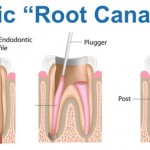 endodontic treatment root canal
