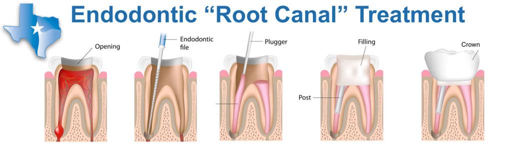 Root-Canal-Southlake-Endodontics