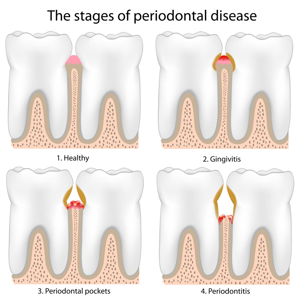 tooth pain - southlake endodontics