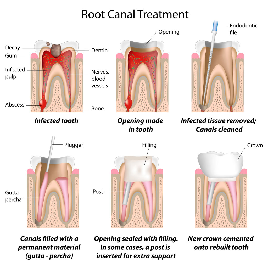 root canal treatment by endodontists