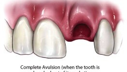 Dislodged Tooth Should Be Placed In Milk Or Patient's Saliva In Transit To Dentist
