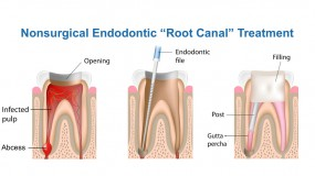 Nonsurgical endodontic (root canal) treatment