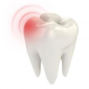 Orofacial-tooth-pain-at-Southlake-endodontics