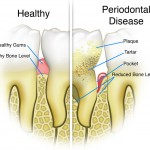 gum disease and tooth pain