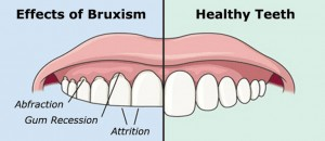 bruxism tooth grinding